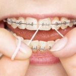 Finding a Skilled Dentist Carrying Out a Safe Invisalign Exton Treatment